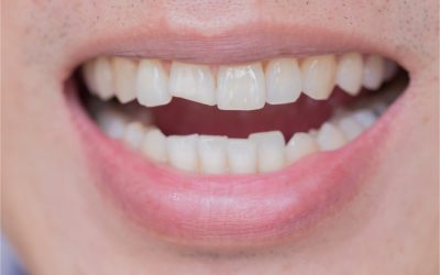 Dental Care: What Should I Do If I Ever Have A Chipped Tooth?