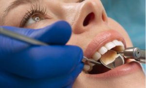 reasons for tooth sensitivity